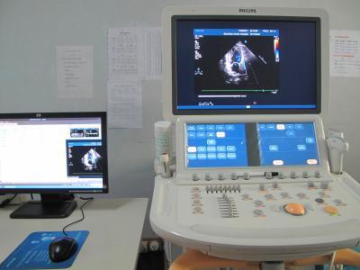 飞利浦IE33彩色多普勒超声诊断仪